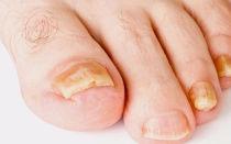 Эффективность лечения ногтевого грибка таблетками — обзор лучших препаратов