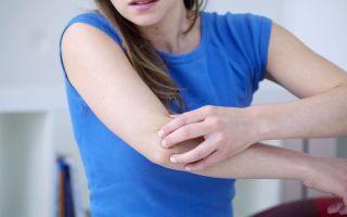 Чесотка: симптомы, лечение, течение заболевания и терапевтическая тактика