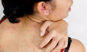 Фото крапивницы, описание симптомов и особенностей лечения