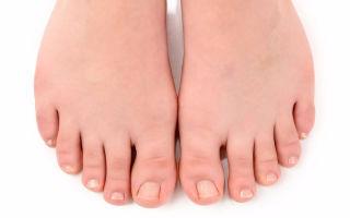 Как лечить вросший ноготь на большом пальце — особенности консервативной и оперативной терапии