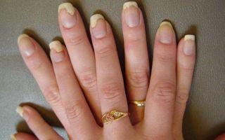 Грибок ногтя: причины, проявления, лечение