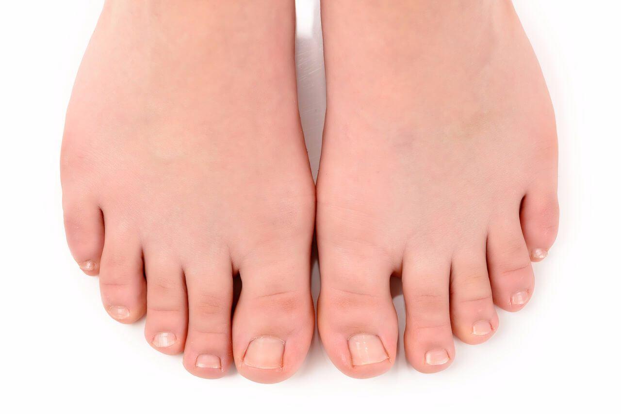 Как лечить вросший ноготь на ноге: первая помощь и меры профилактики