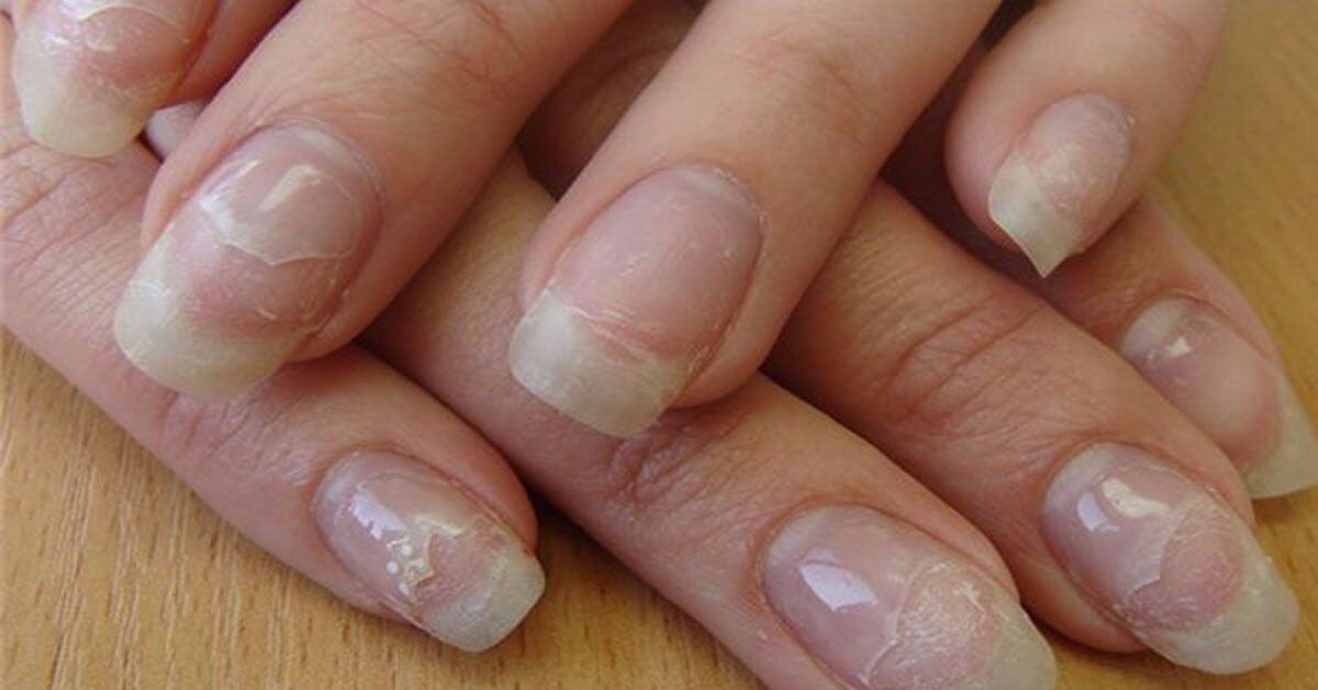 Ногти после акрилового наращивания