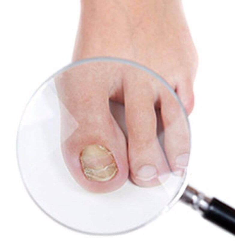 Чем лучше всего вылечить грибок на ногтях ног быстро